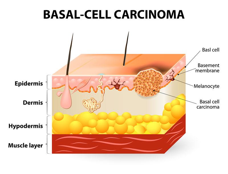 derma-image-car