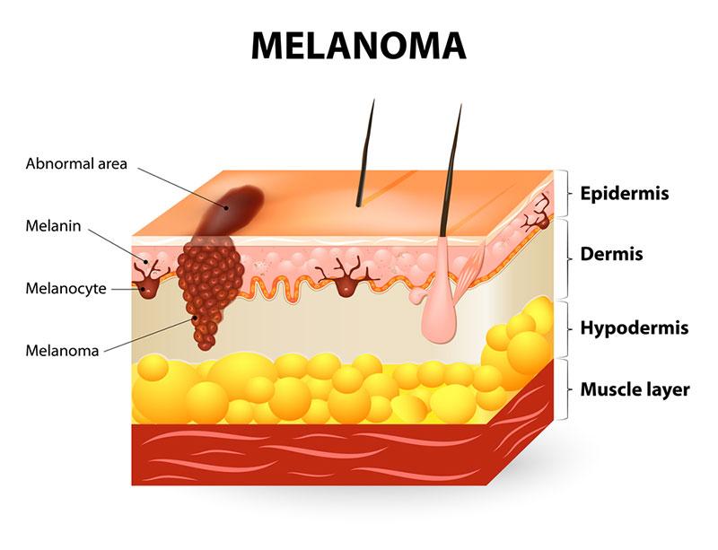 derma-image-melanoma