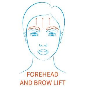 browlift surgery 1