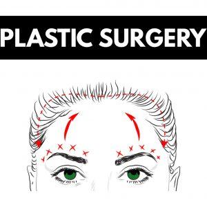 browlift surgery 2