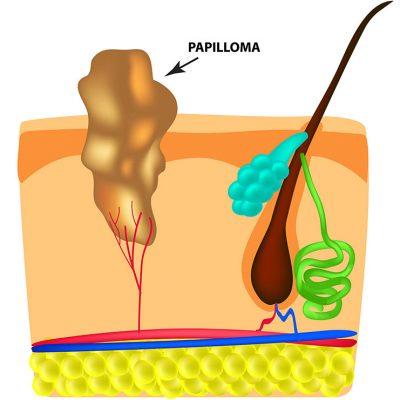 derma-image-thiloma